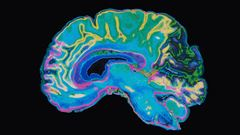 neuroradiology image of a brain scan