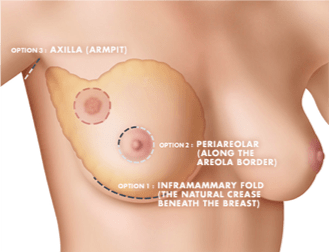 Hidden Scar Lumpectomy