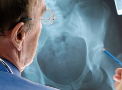 3osteoporosis screening