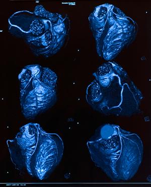 coronaryangioplasty