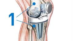 knee replacement bone preparation