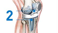 knee replacement Implant positioning