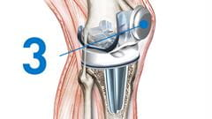 knee replacement resurfacing