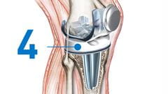 knee replacement Spacer insertion