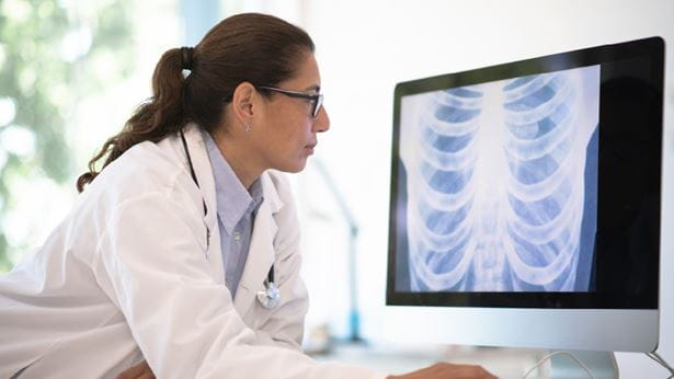 Doctor looking at lung cancer x-rays