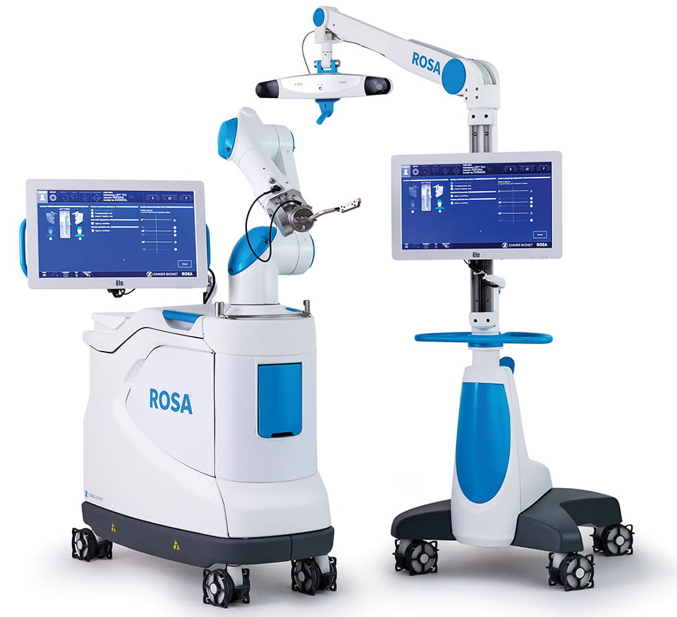 Image of ROSA the Robotic Knee System
